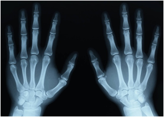 Are X-Rays Dangerous