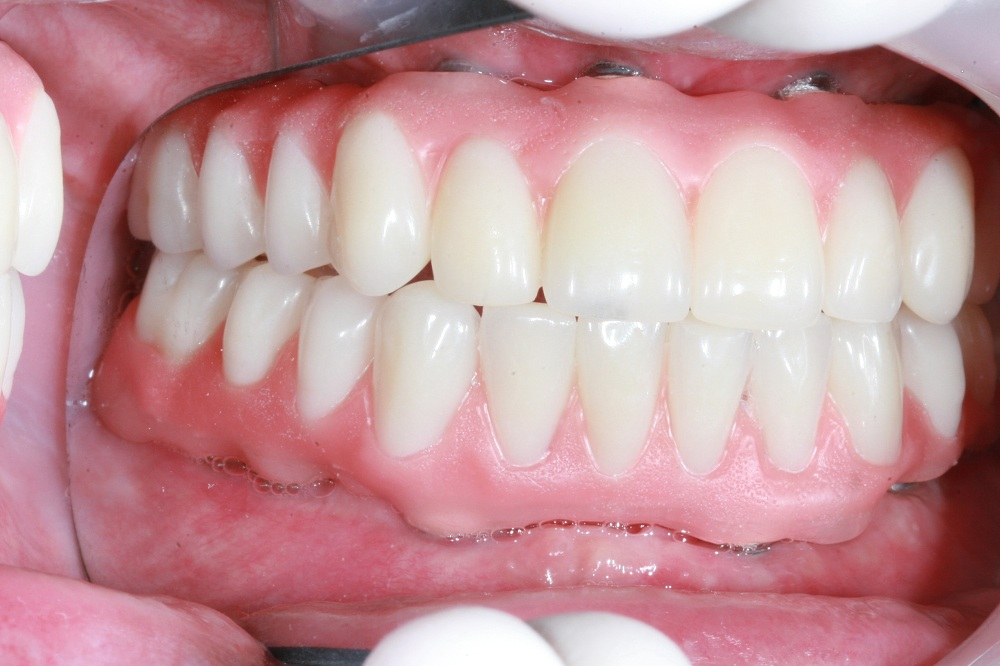 Major Factors to Consider Before Getting Dental Implants